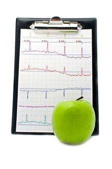 Plane-table With A Cardiogram And Apple Royalty Free Stock Images