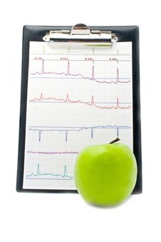 Plane-table With A Cardiogram And Apple Royalty Free Stock Photos