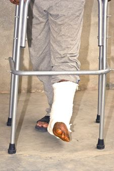 Free Fractured Feet Stock Photos - 13974683