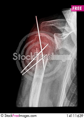 Free Painful Shoulder Surgery Royalty Free Stock Images - 14111639