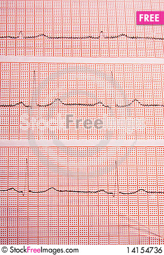 Free Heart Rate On Medical Print Out Royalty Free Stock Image - 14154736