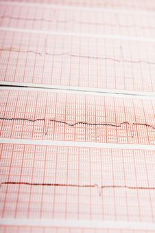 Free ECG Royalty Free Stock Photo - 14154925