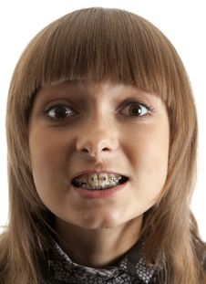 Free Girl Smiles With Bracket On Teeth Royalty Free Stock Images - 14721849