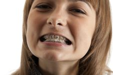 Free Girl Smiles With Bracket On Teeth Stock Photo - 14769730
