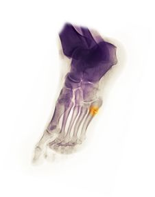 Free Foot X-ray Showing Fracture Stock Photography - 15182882