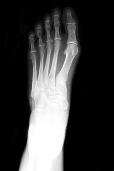 Free AP Foot X-ray Royalty Free Stock Photo - 15528955