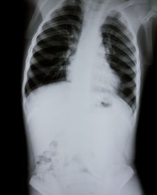 Free Chest X-ray Of Young Boy Stock Photography - 15762002