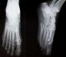 Free X-ray Of Both Human Feet. Stock Photography - 15762052