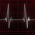 Free Cardiogram Stock Photography - 17925392