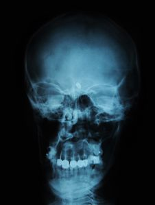 Free X-ray/ Rtg Of Human Head - Teeth Replacement Royalty Free Stock Photo - 18762655