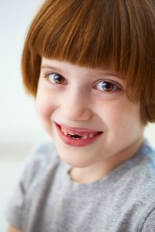 Free Cute Smiling Girl Missing Front Teeth Stock Photos - 18880733