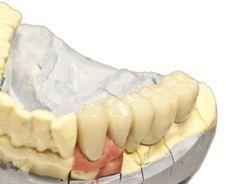 Free Denture Model Stock Photos - 18897753