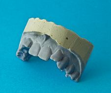 Teeth Plaster Model Royalty Free Stock Photo