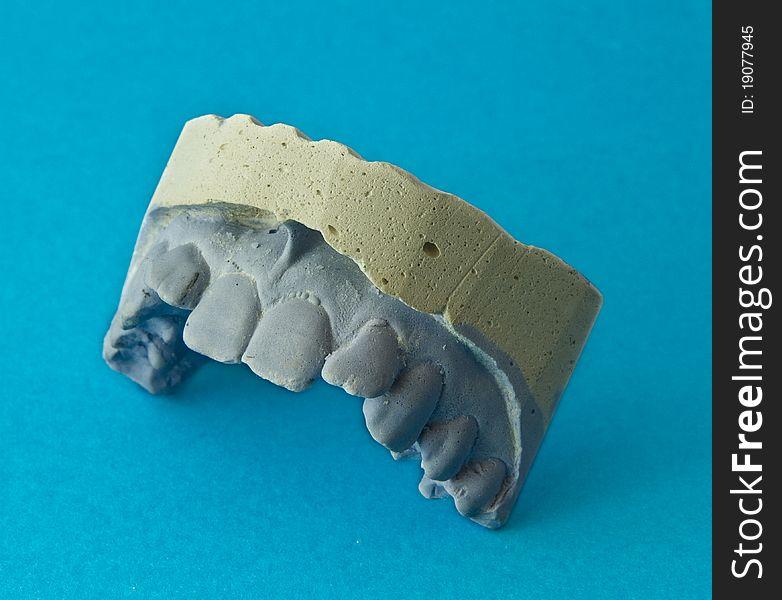 Teeth plaster model