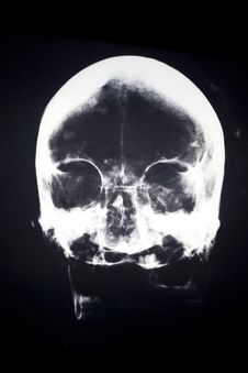 Free X-Ray Of A Human Head Royalty Free Stock Photo - 19509245