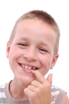 Portrait Of A Boy With A Missing Tooth Royalty Free Stock Photography