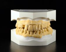 Free Plaster Cast Of The Dental Arch Royalty Free Stock Photos - 21254828