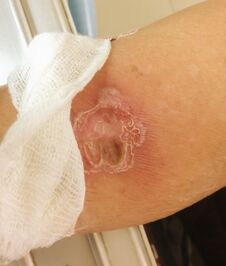 The Wound Diabetic Arm Disease And Burn Wound From Hot Water, Medical And Healthcare Concept Royalty Free Stock Images