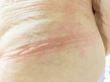 Ill Allergy Rash Dermatitis Eczema Skin Of Patient.red Rash Royalty Free Stock Photos