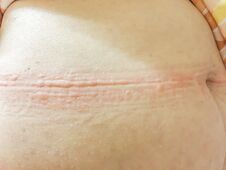 Ill Allergy Rash Dermatitis Eczema Skin Of Patient.red Rash. Stock Image