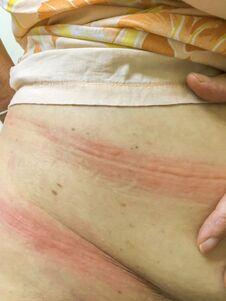 Ill Allergy Rash Dermatitis Eczema Skin Of Patient.red Rash Stock Photos