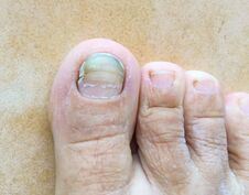Toe Is Fungal Infection.Medical, Treatment, Health And Medicine Concept.Dermatologist Royalty Free Stock Photo