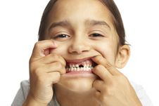 Free Girl With Missing Front Tooth Stock Photos - 25736703
