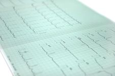 Free Electrocardiogram Royalty Free Stock Images - 2602849