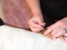 Free Acupuncture Concept Stock Images - 2733554
