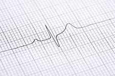 Free Electrocardiogram Graph Stock Photo - 27613710