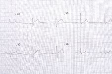 Free Electrocardiogram Graph Stock Photo - 27613720