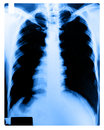 Free X-Ray Image Of Human Chest Royalty Free Stock Images - 28707489