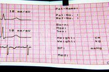 ECG EKG Patient Details Stock Images