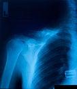 Free X-ray Film Stock Photo - 29215100