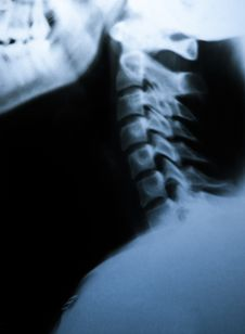 Free X-ray Scan Of Neck. Side View Royalty Free Stock Photo - 29692175