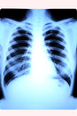 Free Lung X-RAY Of A Female Stock Image - 31246571