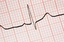 Free Close Up Of Ecg Graph Stock Photos - 3272963