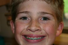 Free Boy Smiling In Braces Stock Photos - 33118063