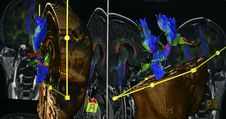 Free Brain MR Imaging Stock Photo - 33304950