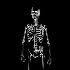 Free X-Ray: Skeleton Royalty Free Stock Photography - 3341057