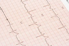 Free EKG Chart Royalty Free Stock Images - 3638039