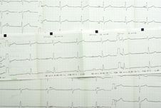 Free Cardiogram Background Stock Images - 4277654