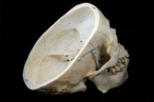 Free Skull With Interior View Royalty Free Stock Photos - 5142208