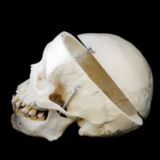 Side View Of Open Human Skull Royalty Free Stock Images
