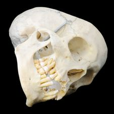 Human Skull Resting On Side Stock Photography