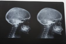 Free Scull X-ray Royalty Free Stock Photos - 5473938