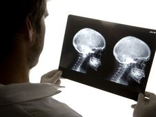 Free Scull X-ray Stock Photo - 5473980