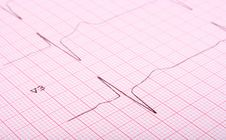 Free Close-up Of Ecg Graph Stock Images - 5840684