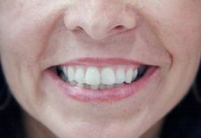 Free Big Smile Stock Photo - 5891490