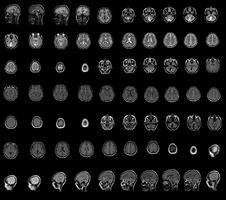 Free MRI Royalty Free Stock Photo - 6117205